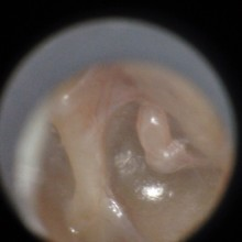 Patient's left eardrum captured by the CellScope Oto.