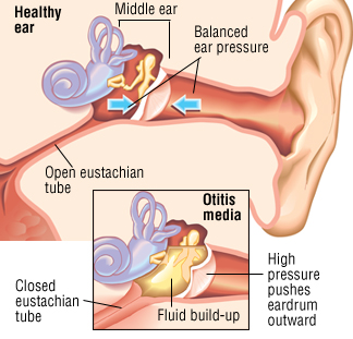 A depiction of the difference between a normal and infected ear. (Source: http://www.drugs.com/health-guide/middle-ear-infection-otitis-media.html)